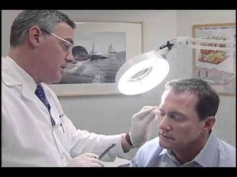 Skin Cancer check up and screening