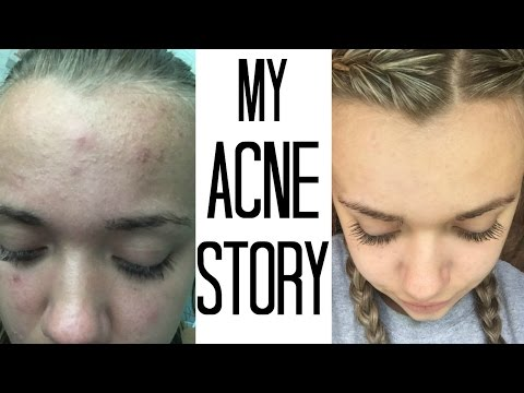 HOW I GOT RID OF MY ACNE