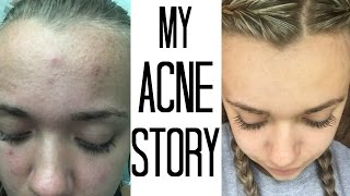 How I Got Rid Of My Acne