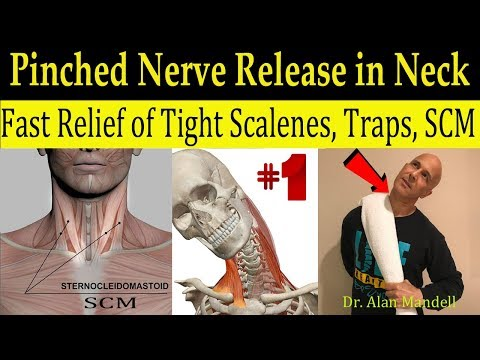 Wicked Neck Stretch for Fast Relief of Tight SCM, Trap, Scalene, & Pinched Nerve - Dr Mandell, DC