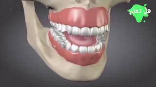هل تعلم ماذا سيحدث إن استعملت فرشاة الأسنان لفترة طويلة؟