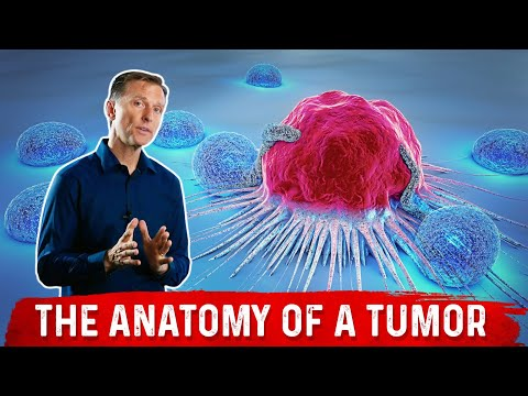 What Causes Tumors, Polyps, Moles & Pimples