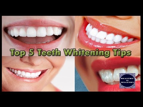 Top 5 Teeth whitening tips | Whiten Your teeth with 5 different methods