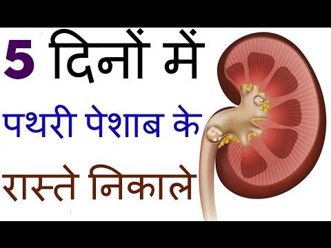 kidney stone treatment in hindi ||Home Remedies for Kidney Stones || 5दिनों में पथरी पेशाब के रास्ते