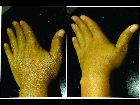 HOW I REMOVE WRINKLES FROM MY HANDS NATURALLY AND FAST