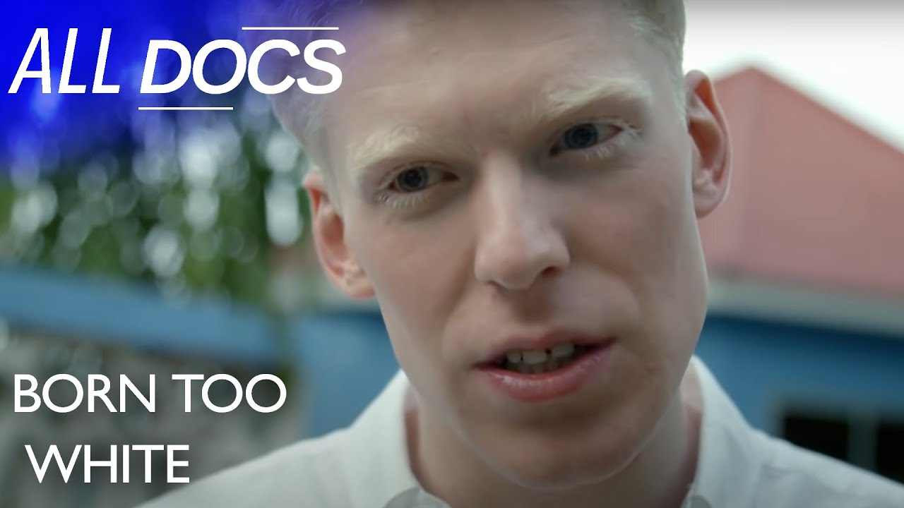Born Too White: What It's Like To Have Albinism in Tanzania   Full Documentary   Reel Truth