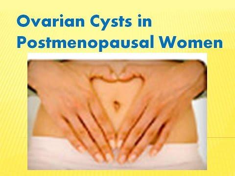 Ovarian Cysts in Postmenopausal Women
