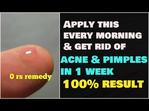 HOW TO REMOVE ACNE & PIMPLE in 1 WEEK 100% RESULT | GET RID OF ALL SKIN PROBLEM USING SPIT