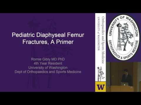 Pediatric Femur Fractures: Past, Present, and Future Treatment