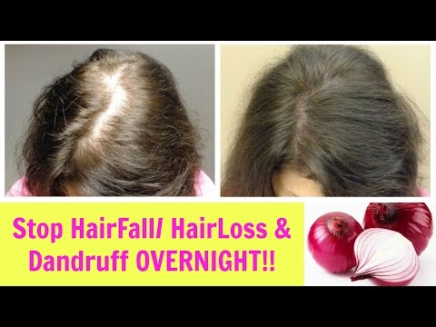How To Stop and Prevent Hair Breakage and Maintain the length  I Stop Hair Shedding Naturally
