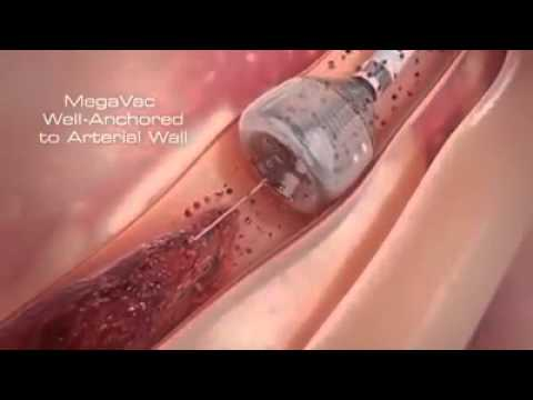 Newest Technology   Heart Stent video (Angioplasty) New Medical Line Video   Heart Attack reasons