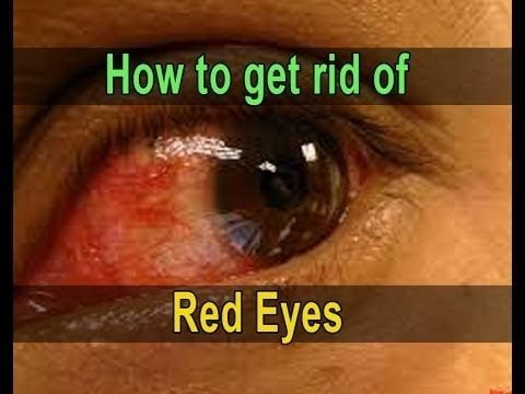 Red Eye Treatment - How to Get Rid of Red Eyes Fast