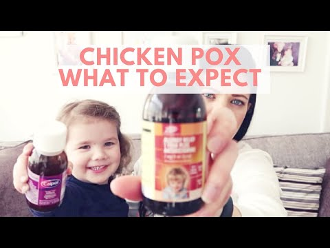 Chicken Pox what to expect