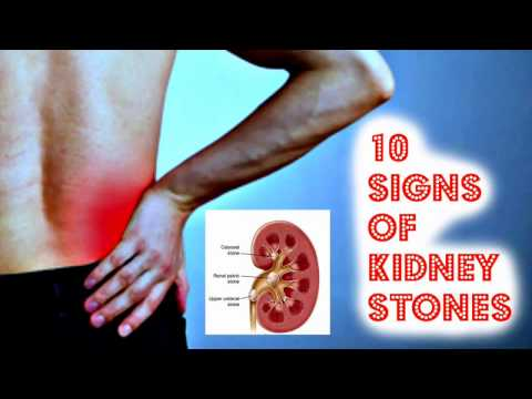 10 Signs of Kidney Stones