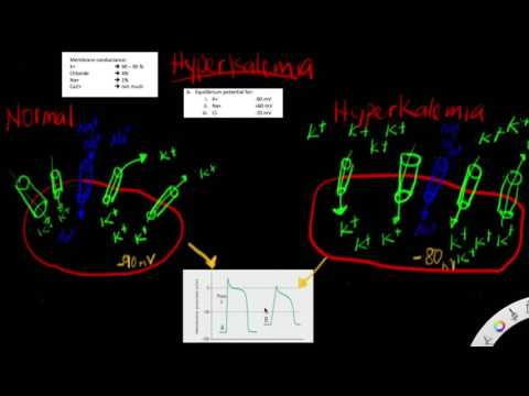 Hyperkalemia - The effects of hyperkalemia on resting membrane potential - depolarized - why & how