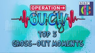 Download Operation Ouch | Top 5 Gross-out Moments | CBBC Video