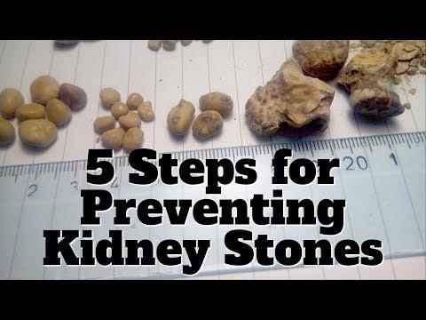 5 Steps To Prevent Kidney Stones