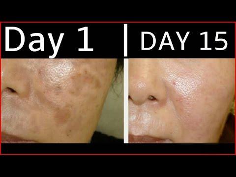 How To Get Rid Of Dark Spots, Black Spots, Acne Scars By Simple Beauty Secrets