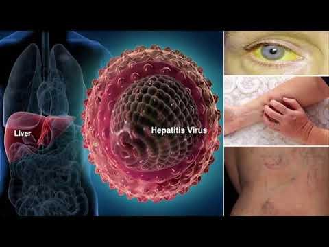HOW TO CURE HEPAtitis c | treamtent of hepatitis c