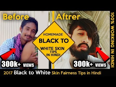 2017 Black to White Skin Fairness Tips in Hindi | Skin fairness Tips |