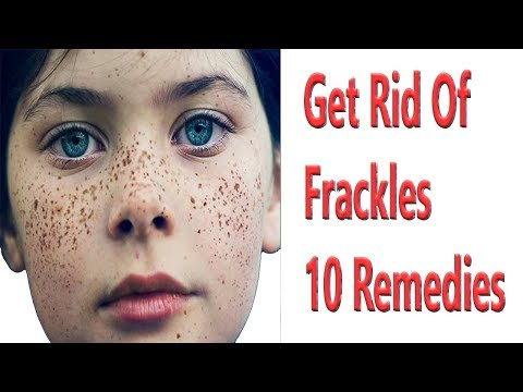 Get Rid Of Frackles Naturally at Home With 10 Remedies
