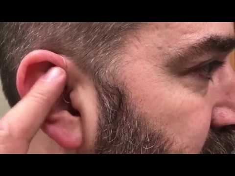 Hearing Aid connects directly with Bluetooth - Signia Pure 312 7Nx