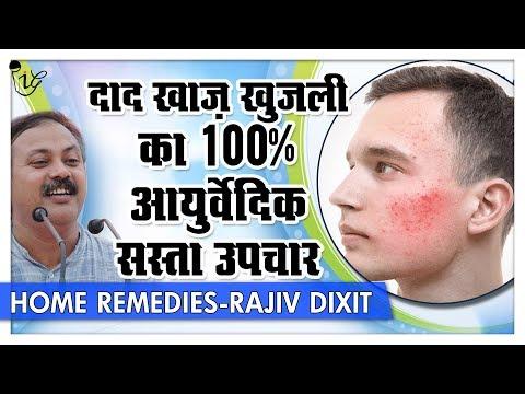 Rajiv Dixit - दाद खाज़ खुजली का बेजोड़ आयुर्वेदिक सस्ता उपचार | Best Ringworm Solution
