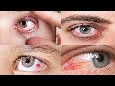 How to cure red eye lines || How such red lines appears in an eye