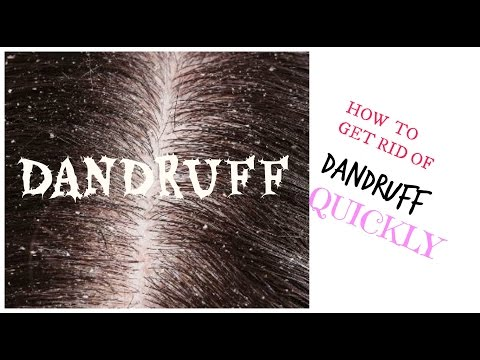 How to Get Rid of Dandruff Quickly