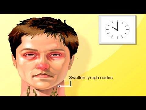 Why Lymph Nodes Swell Animation - Lymphatic System: Structure & Function. Anatomy & Physiology Video