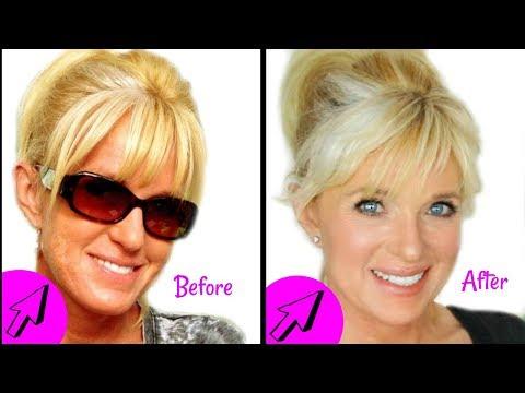 HOW TO: Fade Hyperpigmentation, Melasma & Dark Spots On The Face! REVERSE Sun Damage!