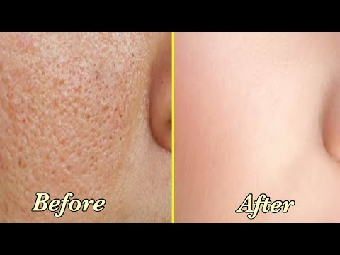 How To Get Rid Of Large Open Pores in 3 Days || Best Home Remedies For Open Pores Treatment