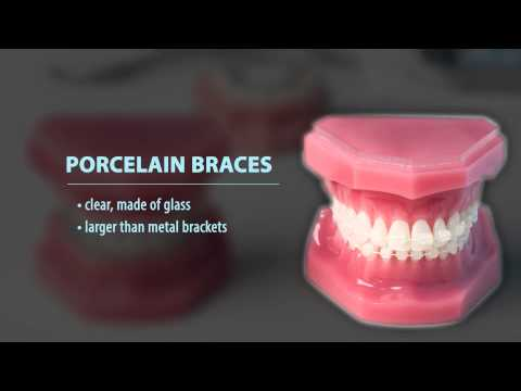 What types of braces are available?