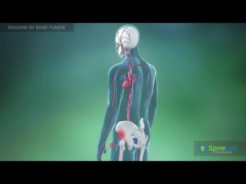 Bone Tumor. Reasons