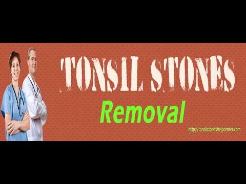 Natural Tonsil Stone Removal Within Just 4 Weeks