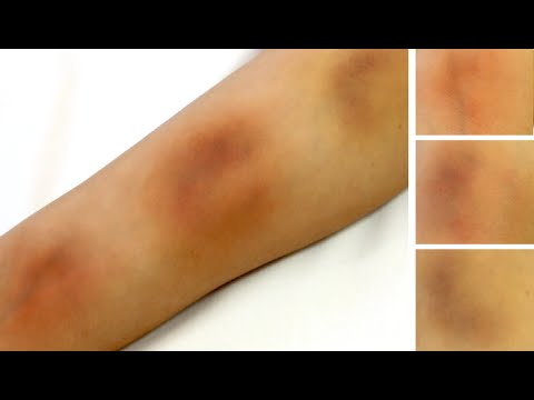 SFX Makeup Tutorial | THREE STAGES OF BRUISING | Realistic Buises Using Creams
