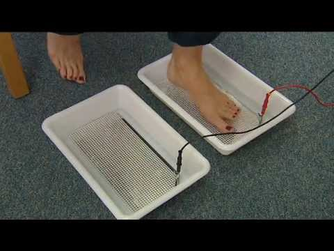 Treating hyperhidrosis of the feet with an Idrostar Pro Pulse iontophoresis machine