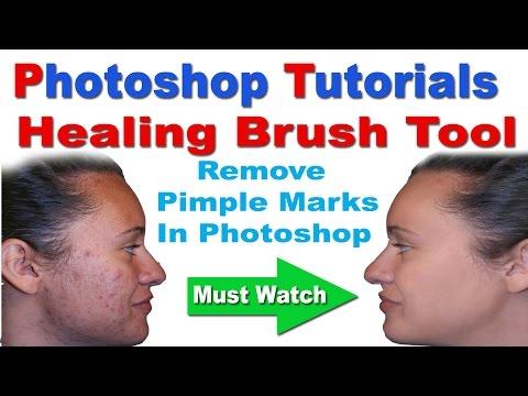 Healing Brush Tool Tutorial In Photoshop - Remove Pimple Marks In Hindi/Urdu