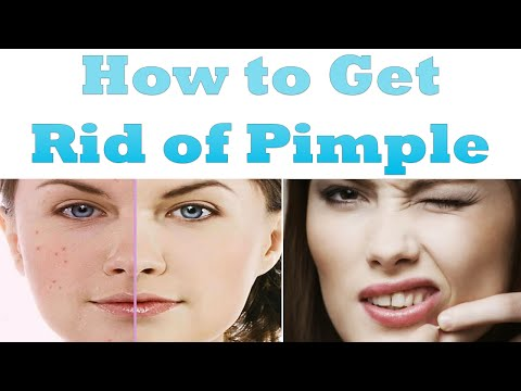 How to Get Rid of a Pimple | How to Get Rid of Pimples Fast