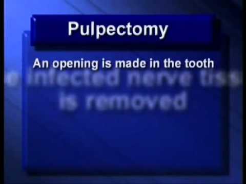 PEDO PULPECTOMY