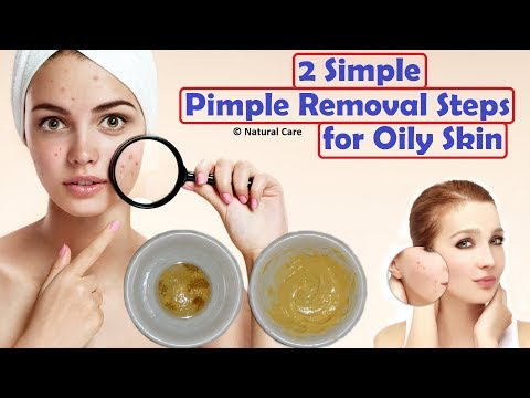 2 Simple Pimple Removal Steps for Oily Skin