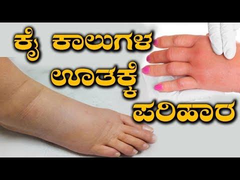 Edema Treatment | How To Cure Swelling In Hands & Legs | ನೀರು ತುಂಬಿಕೊಂಡು ಮೈ ಕೈ ಊತ- ನಿವಾರಣೆ ಹೇಗೆ?