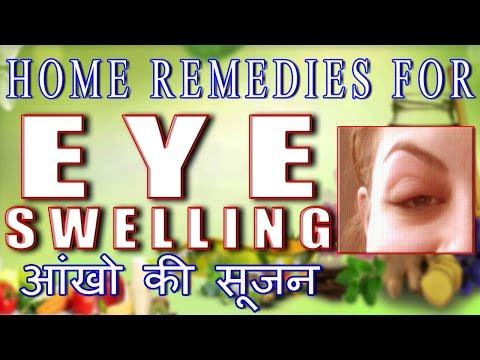 Home Remedies for Eye Swelling II आँखों की सूजन का घरेलू उपचार II