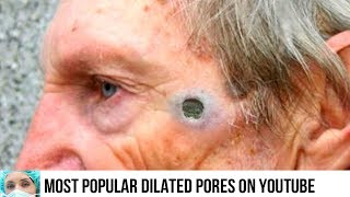 dialted pore of winer removal Videos - 9tube tv