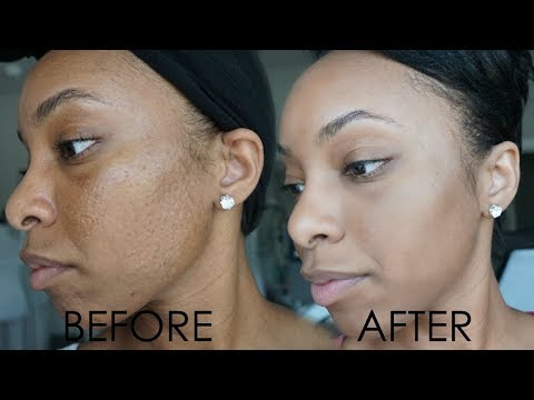 HOW TO MINIMIZE PORES AND FADE DARK SPOTS FAST!! | AFFORDABLE SKINCARE ROUTINE FOR OILY SKIN/ACNE