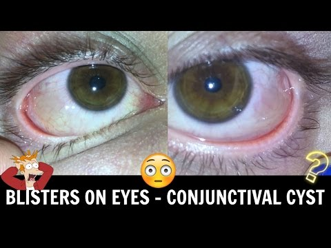 ♡ Blisters On The Eyeball!? • Conjunctival Cyst ♡
