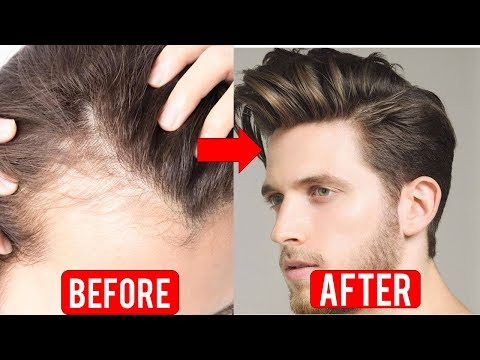3 Things You Can Do To Stop Baldness - Natural Method to Stop Hair Loss
