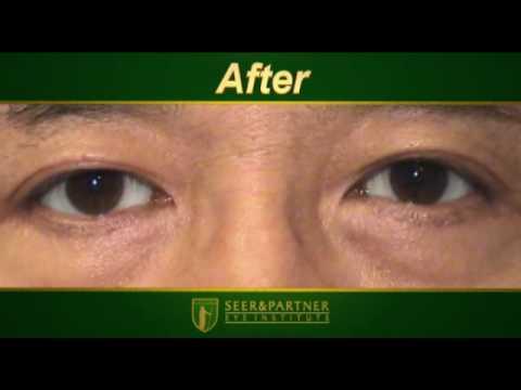 COSMETIC EYE WHITENING™ Surgery