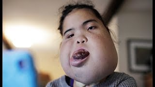 Teenager With Facial Tumour Proves Doctors Wrong | BORN DIFFERENT
