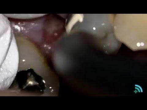 Healthy Teeth Videocase 2